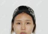 在妈妈的鼓励下我找宁波静港整形医院林忠泵做了双眼皮和隆鼻