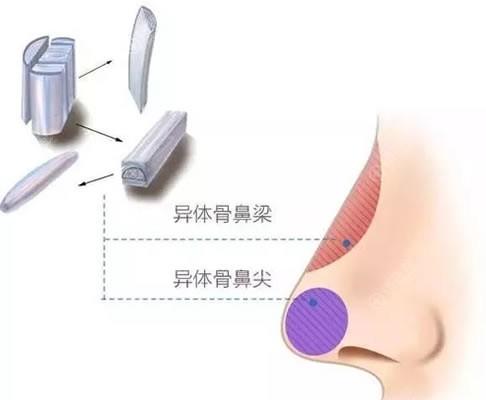 异体软骨隆鼻效果示意图