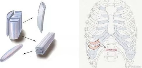 同种异体骨和自体肋软骨的区别