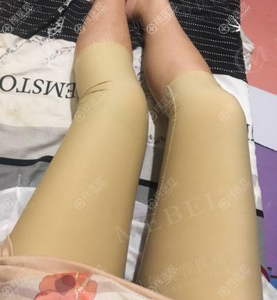 苏州美贝尔大腿吸脂修复案例