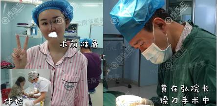 综合隆鼻术前准备