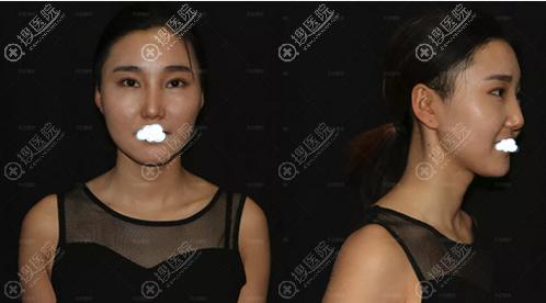 看天生歪鼻的她怎样在郑州天后找王永功做歪鼻矫正重获美丽的