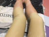 苏州美贝尔吸脂怎么样?看我找聂志宏做的大腿二次吸脂修复案例