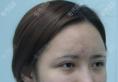 南宁华美眼部修复怎么样?隋长清双眼皮失败修复案例术后恢复图
