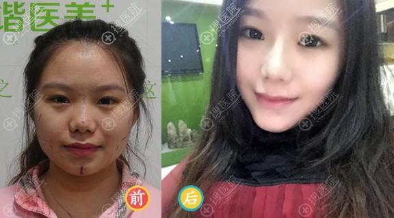 北京东方和谐常双明自体脂肪填充案例