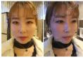 没想到在杭州华山连天美做完玻尿酸和瘦脸针的效果会如此惊艳