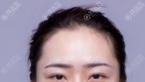 找重庆军美注射肉毒素瘦脸针+玻尿酸丰下巴案例对比与优惠价格