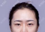 找重庆军美注射瘦脸除皱瘦脸针+玻尿酸丰下巴案例对比与优惠价格