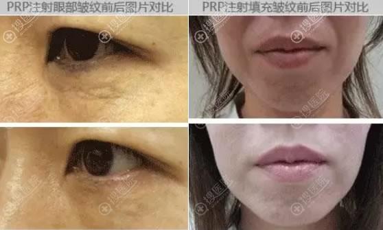 宁波同仁PRP自体血清抗衰老案例