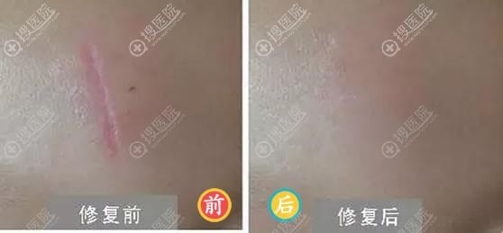 昆明同仁整形PRP修复疤痕案例
