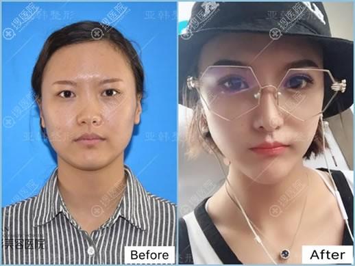 兰州亚韩做双眼皮和隆鼻对比照