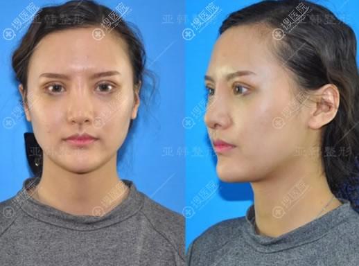 兰州亚韩刚做完双眼皮和隆鼻照片