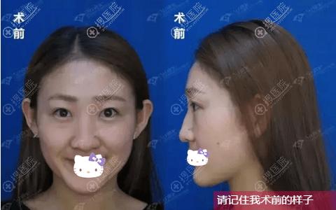 综合隆鼻术前照片