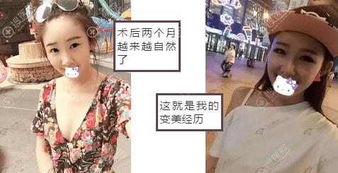 崔昌墉综合隆鼻2个月术后照片
