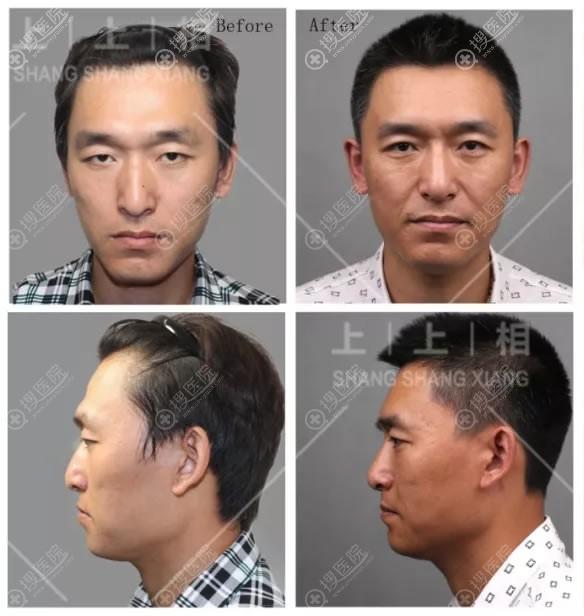 北京上上相ART自体脂肪隆鼻案例