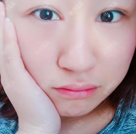 在北京悦芳亚做双眼皮20天恢复照