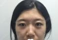 沈阳元辰陈军案例:硅胶垫下巴+隆鼻+面部填充+眼部整形价格表