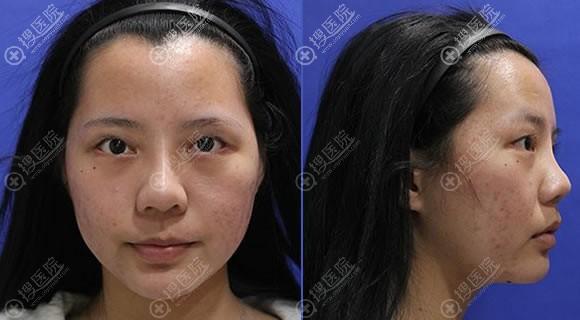 在北京惠和嘉美做隆鼻和双眼皮前