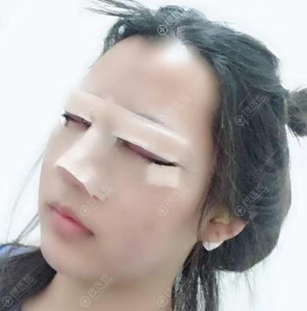 刚做完膨体隆鼻和双眼皮图片