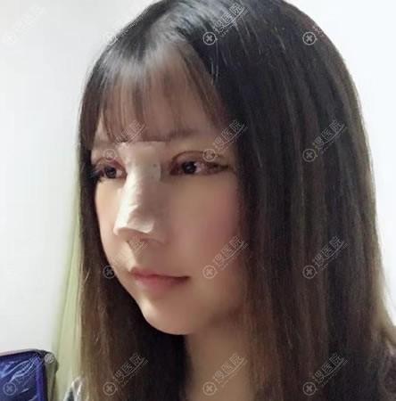 做完假体隆鼻和双眼皮7天后