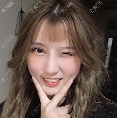 北京惠合嘉美双眼皮和隆鼻案例