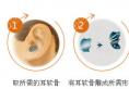 深圳格美黄印资教授解说耳软骨隆鼻能保持终身吗?多久恢复期?