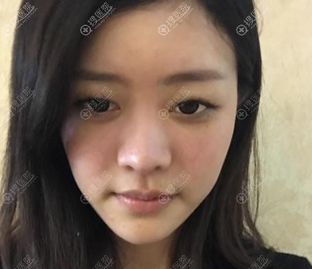 在南京艺星做双眼皮和隆鼻前