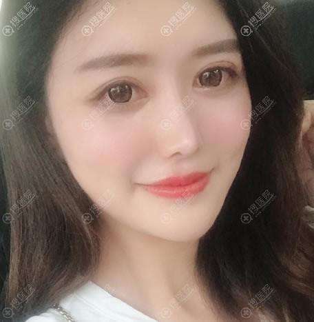 南京艺星双眼皮和隆鼻案例2月效果