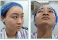 半肋隆鼻+鼻基底填充案例带你了解武汉爱思特杨水斌做鼻子好吗