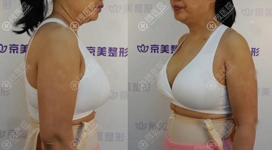 在北京京美做奥美定取出和隆胸3天后