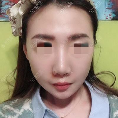 北京延世金惠燕线雕案例15天效果