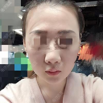 在北京延世做面部线雕2月后