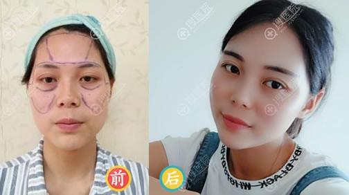 武汉华美医院刘光伟自体脂肪填充案例