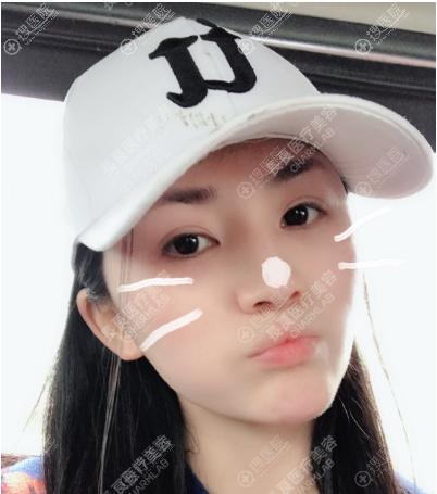 重庆长良线雕案例两个月拥有少女脸
