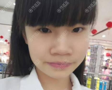 在北京东方医院做下颌角前