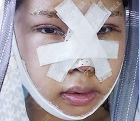 北京东方医院做下颌角眼鼻即刻效果