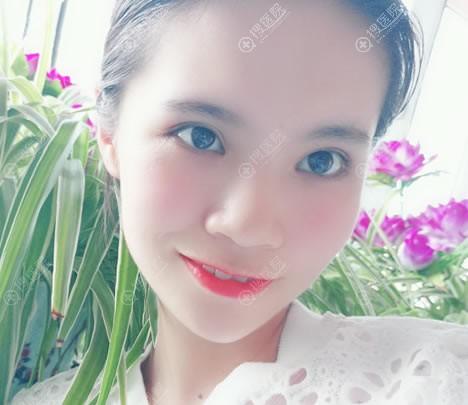 北京东方医院祝东升下颌角案例