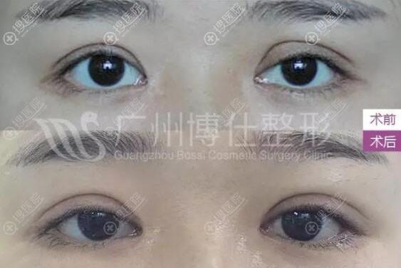 广州博仕整形张建军双眼皮失败修复真人案例