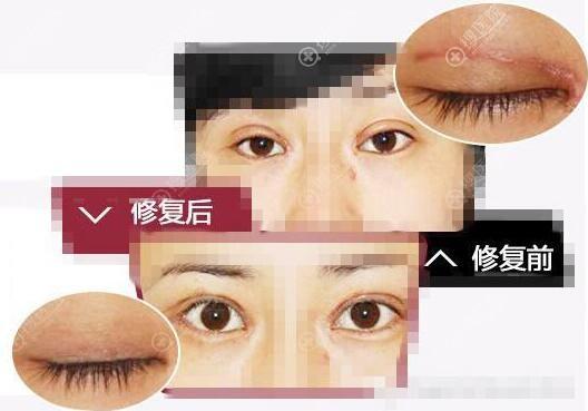 广州壹加壹项美连双眼皮失败修复效果对比图
