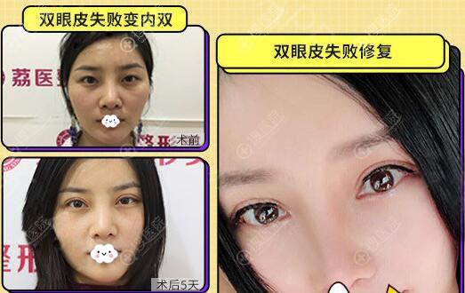 广州荔医李增产眼部修复案例对比图