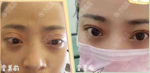 广州荔医医疗美容曾德浩双眼皮失败修复案例