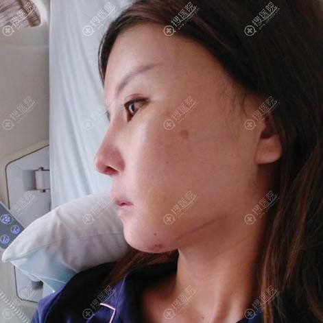 重庆华美医院做颧骨下颌角5天后