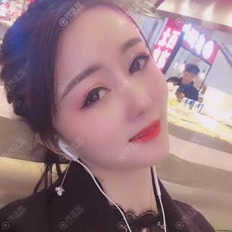 重庆华美陈熏颧骨下颌角案例