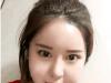 感觉找南京康美整形医院张让虎做的面部吸脂效果比打瘦脸针更好