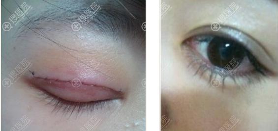 海南星之美韩式双眼皮术后即刻与恢复案例效果图