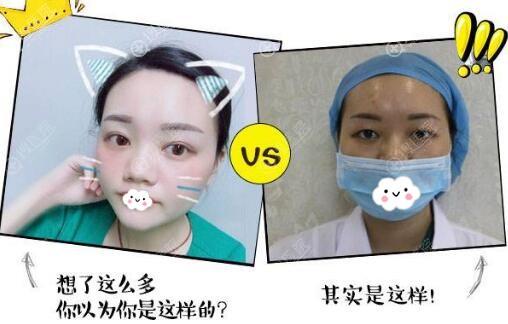 怀化德美李倩韩式微创小清新双眼皮案例前后效果对比图