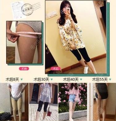 成都赵善军博士整形赵兴阳吸脂瘦大腿真人案例