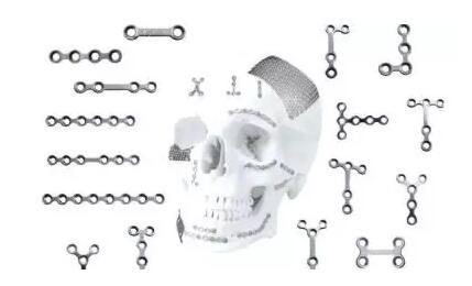 颧骨整形中使用到的钛钉