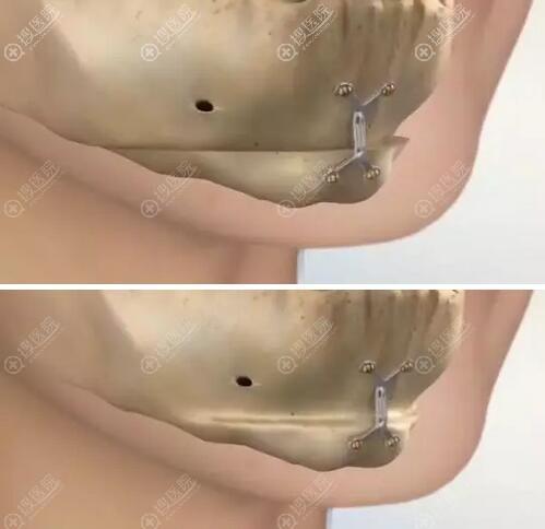 钛钉在面部轮廓整形手术中的应用