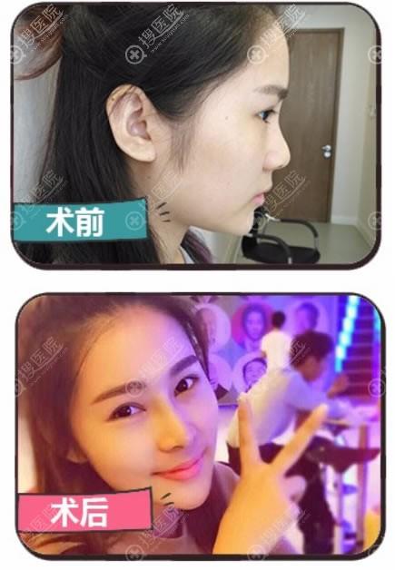 北京美憬李炳烩鼻综合隆鼻案例